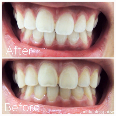 led teeth whitening singapore
