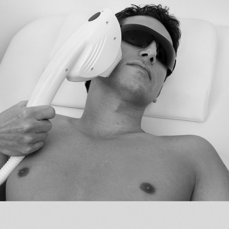 medical laser for pimples pores and pigmentation